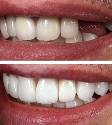 Patient 4's smile improvement