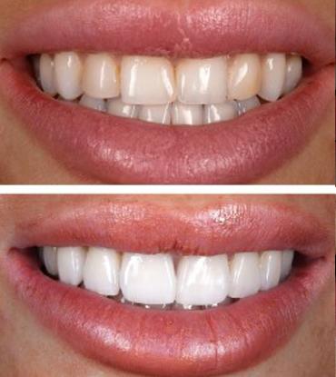 Patient 8's smile improvement