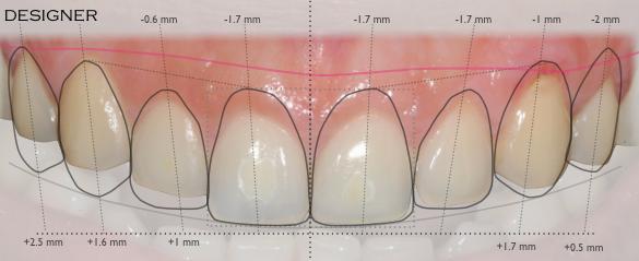 Smile Design Example